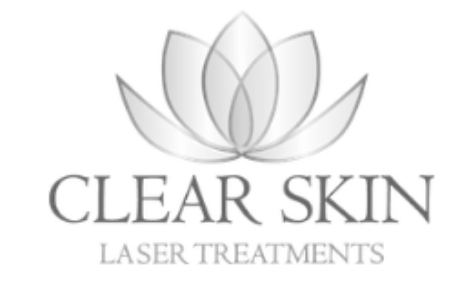 Clear skin laser treatments