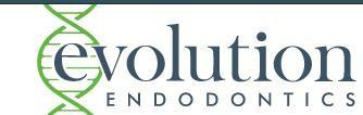Evolution Endodontics